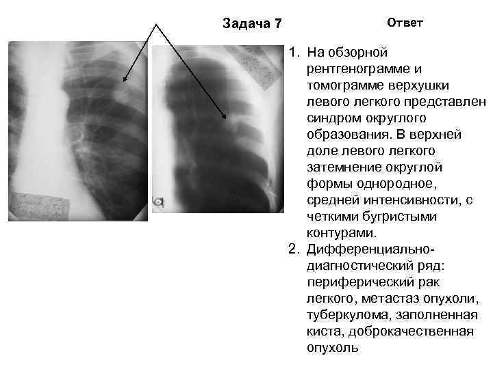 Задача 7   Ответ   1. На обзорной    рентгенограмме