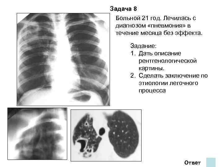 Задача 8 Больной 21 год. Лечилась с диагнозом «пневмония» в течение месяца без эффекта.