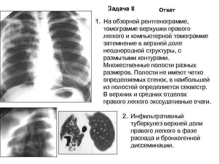 Задача 8   Ответ 1. На обзорной рентгенограмме, томограмме верхушки правого