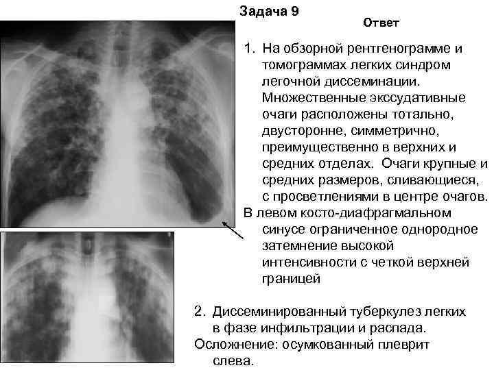 Задача 9    Ответ  1. На обзорной рентгенограмме и