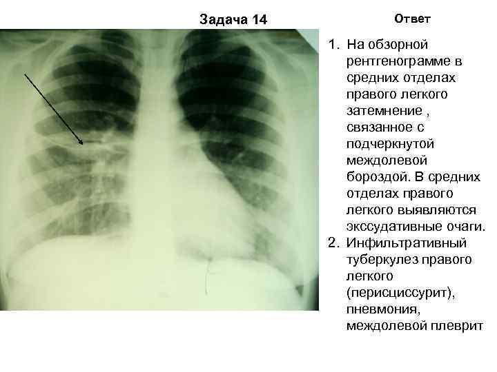 Задача 14  Ответ   1. На обзорной    рентгенограмме в