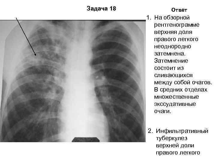 Задача 18  Ответ   1. На обзорной    рентгенограмме