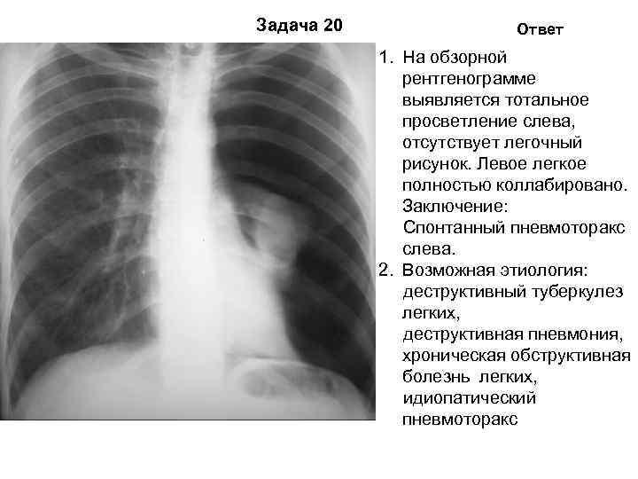 Задача 20   Ответ   1. На обзорной    рентгенограмме