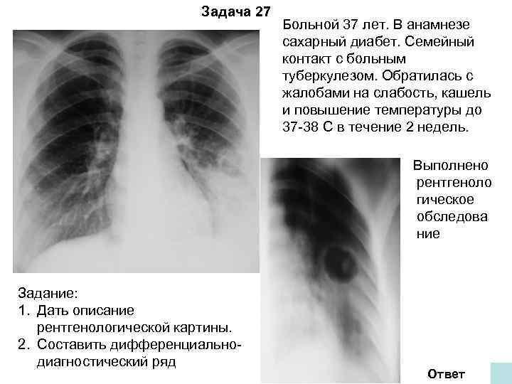 Задача 27       Больной 37