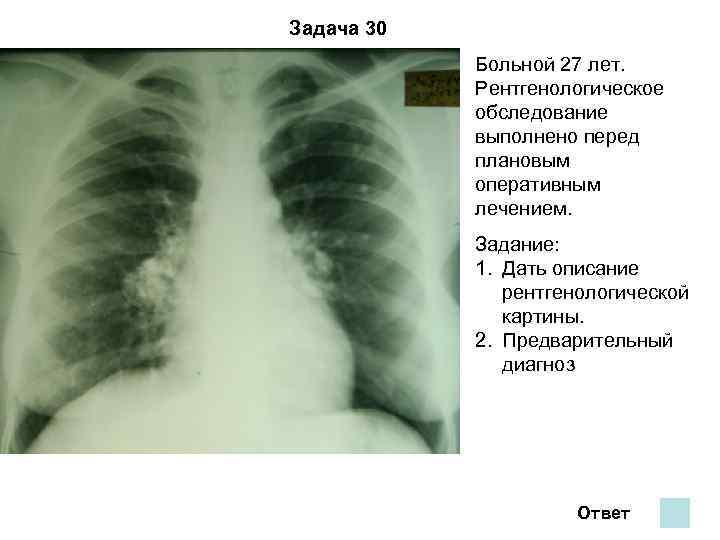 Задача 30   Больной 27 лет.   Рентгенологическое   обследование