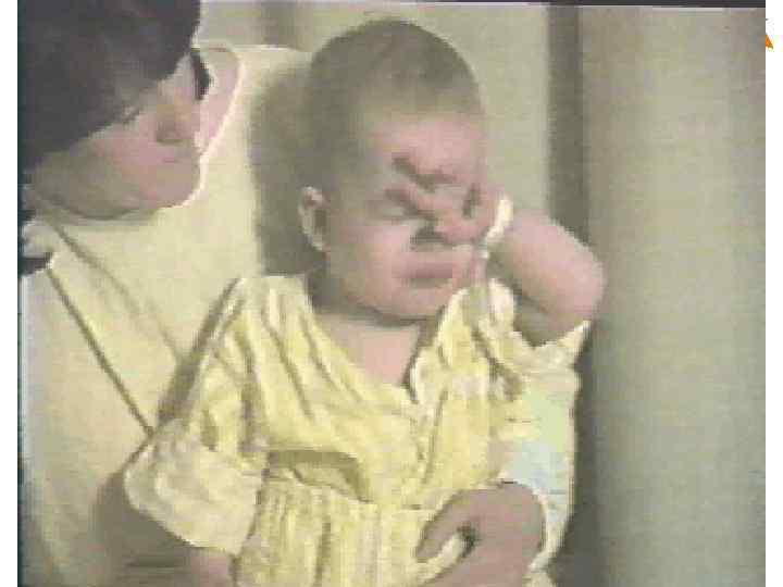 Paediatric Vaccines