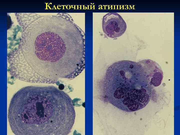 Клеточный атипизм