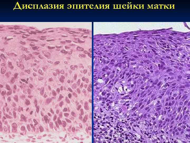 Дисплазия эпителия шейки матки
