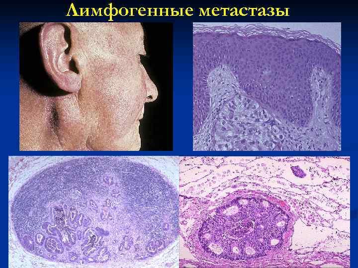 Лимфогенные метастазы