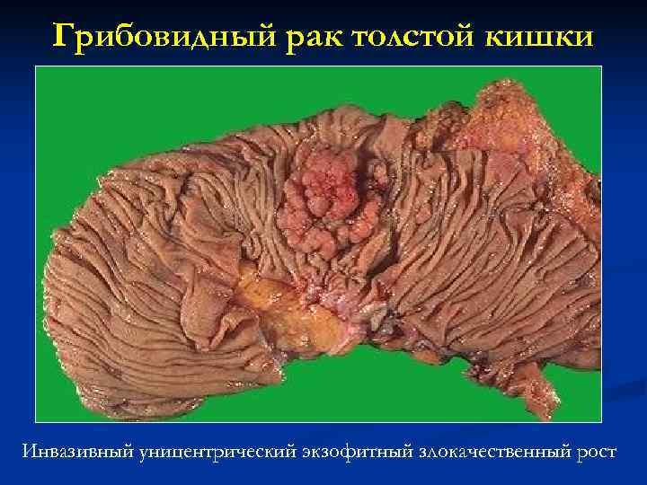 Грибовидный рак толстой кишки Инвазивный уницентрический экзофитный злокачественный рост