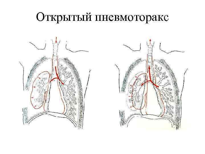 Открытый пневмоторакс