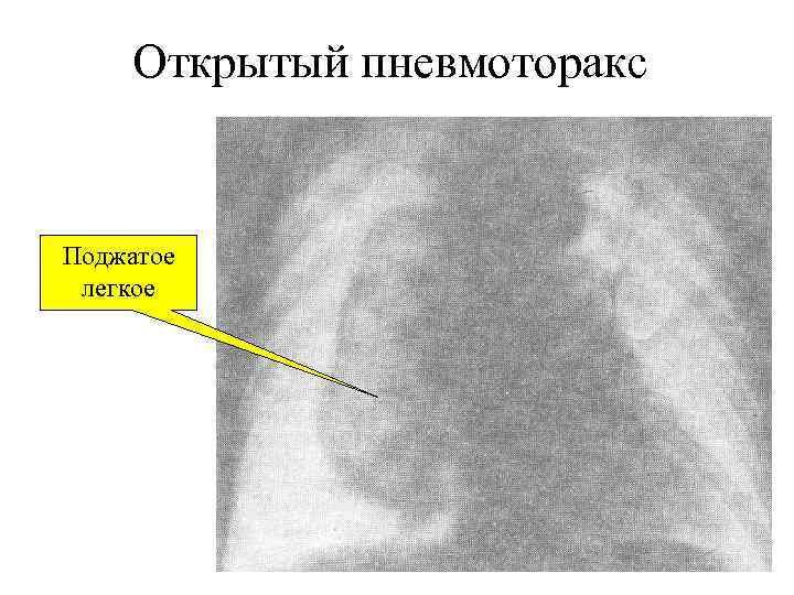 Открытый пневмоторакс  Поджатое легкое