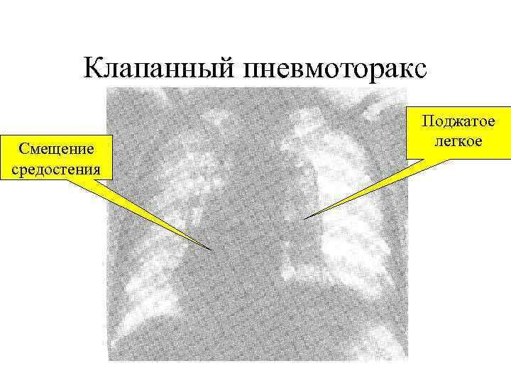 Клапанный пневмоторакс     Поджатое Смещение