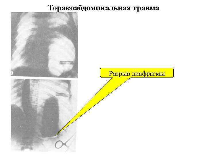 Торакоабдоминальная травма    Разрыв диафрагмы