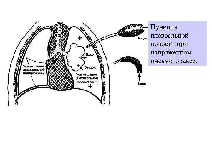 Пункция плевральной полости при напряженном пневмотораксе.