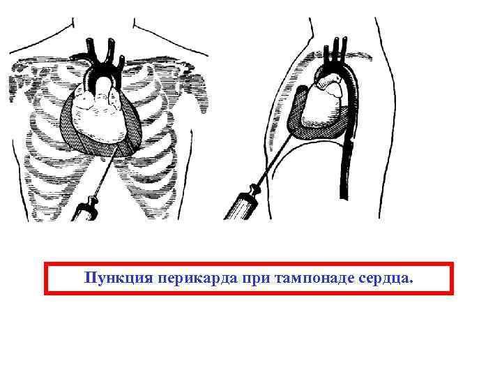 Пункция перикарда при тампонаде сердца.