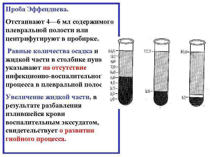 Проба Эффендиева. Отстаивают 4— 6 мл содержимого плевральной полости или центрифугируют в пробирке. Равные