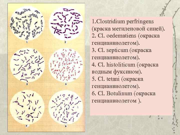 1. Clostridium perfringens (краска метилеиовой синей). 2. Cl. oedematiens (окраска генцианвиолетом). 3. Cl. septicum