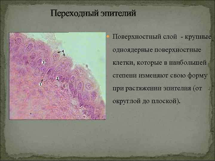 Переходный эпителий    Поверхностный слой - крупные    одноядерные поверхностные