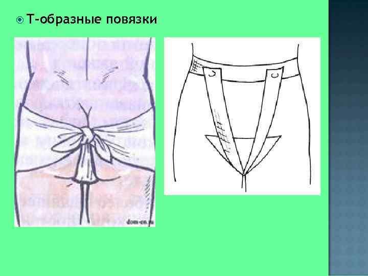 Т-образные  повязки