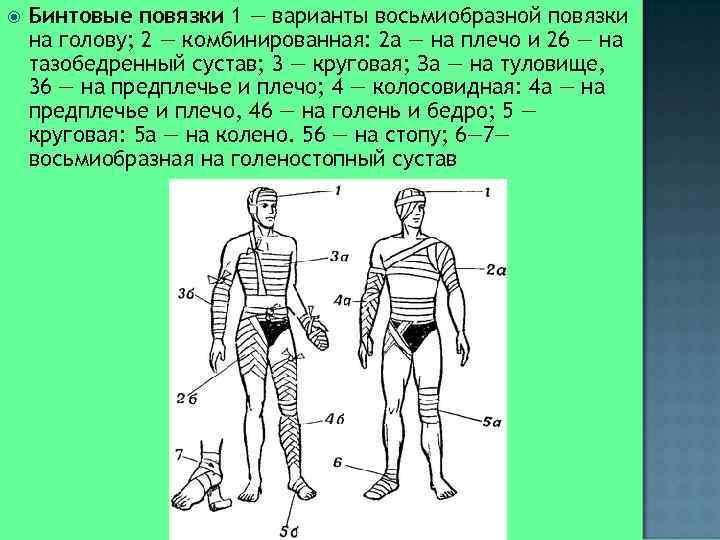 Бинтовые повязки 1 — варианты восьмиобразной повязки на голову; 2 — комбинированная: