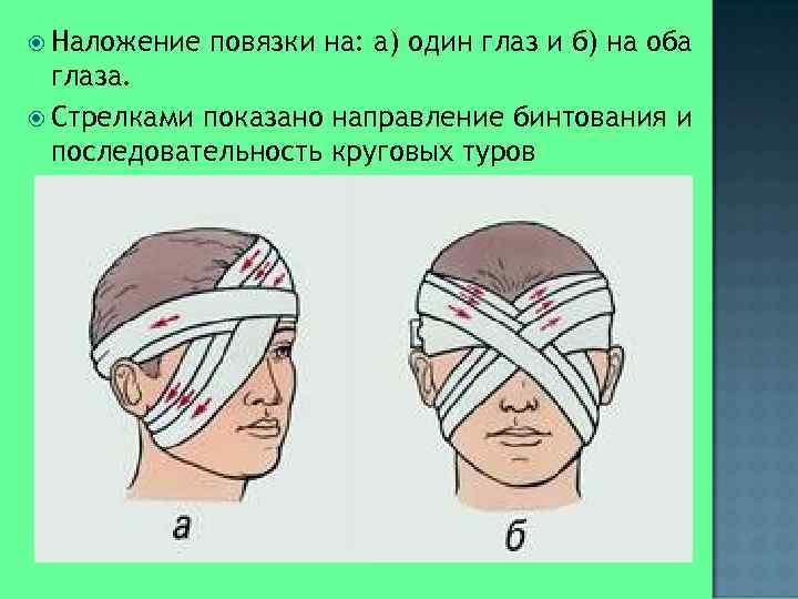 Наложение  повязки на: а) один глаз и б) на оба  глаза.
