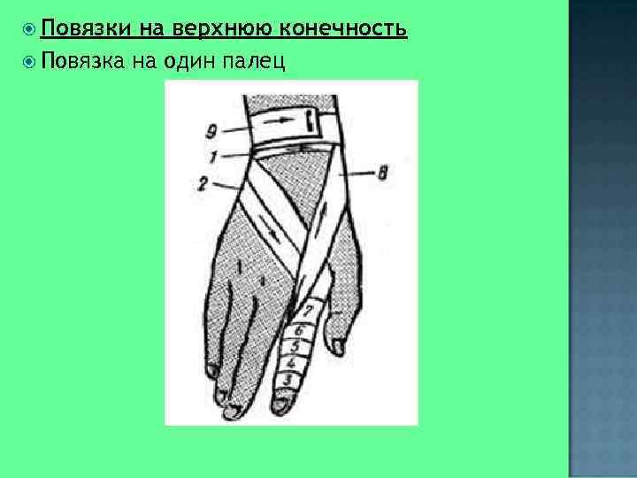 Повязки на верхнюю конечность  Повязка на один палец