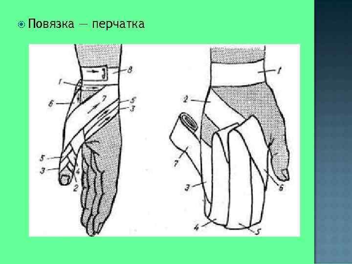 Повязка  — перчатка