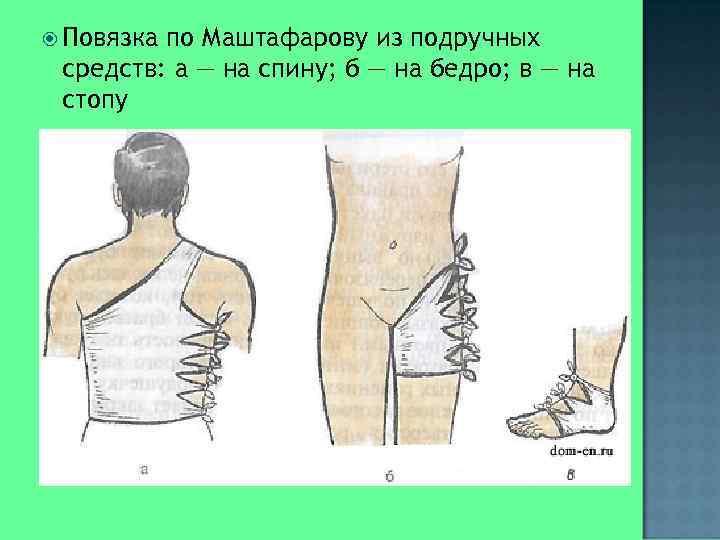 Повязкапо Маштафарову из подручных средств: а — на спину; б — на бедро;