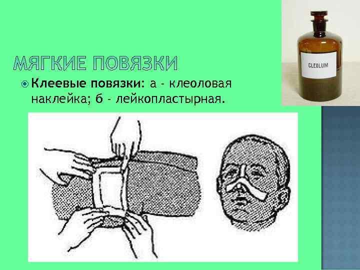 Клеевые повязки: а - клеоловая наклейка; б - лейкопластырная.
