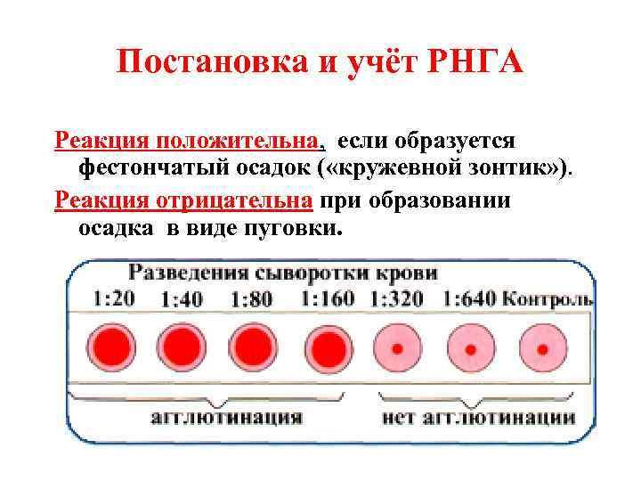 Постановка и учёт РНГА Реакция положительна, если образуется  фестончатый осадок (