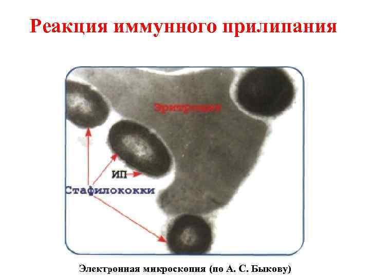 Реакция иммунного прилипания   Электронная микроскопия (по А. С. Быкову)