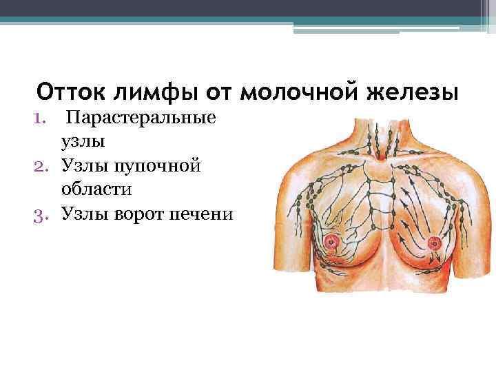 Отток лимфы от молочной железы 1.  Парастеральные узлы 2. Узлы пупочной области 3.
