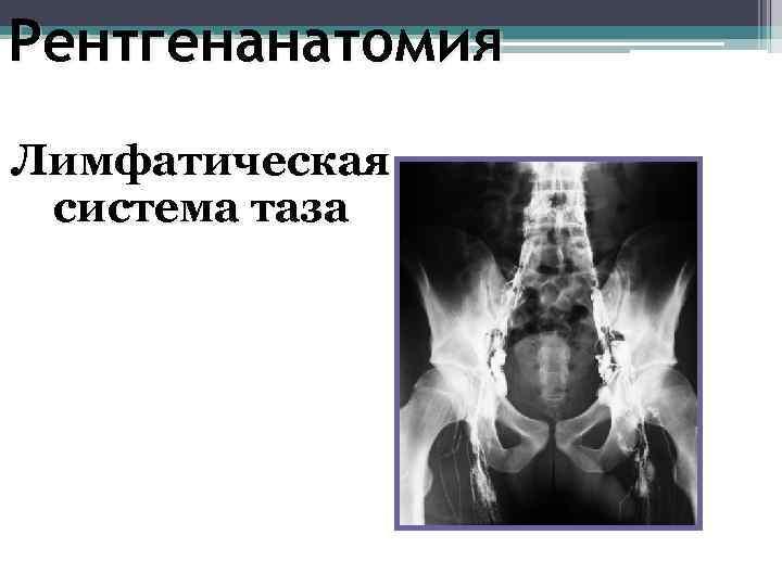 Рентгенанатомия Лимфатическая система таза