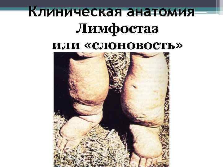 Клиническая анатомия Лимфостаз  или «слоновость»