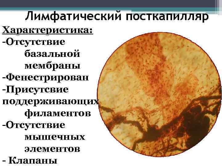Лимфатический посткапилляр Характеристика: -Отсутствие базальной мембраны -Фенестрирован -Присутсвие поддерживающих филаментов -Отсутствие мышечных