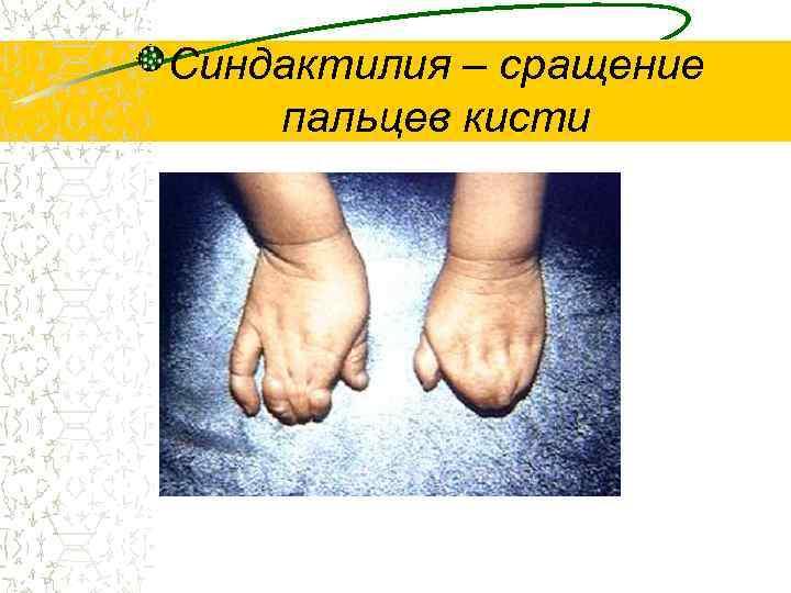 Синдактилия – сращение пальцев кисти