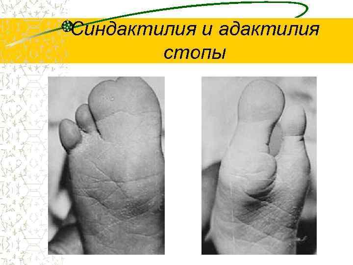 Синдактилия и адактилия   стопы
