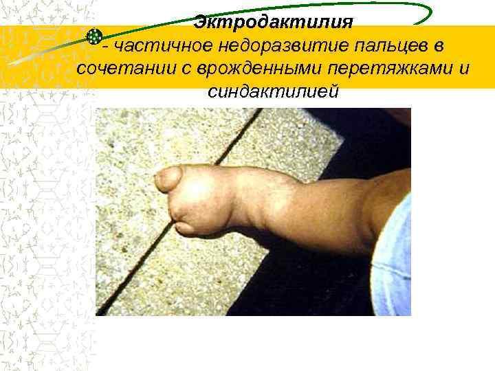 Эктродактилия  - частичное недоразвитие пальцев в сочетании с врожденными перетяжками и