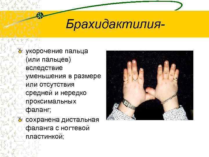 Брахидактилия- укорочение пальца (или пальцев) вследствие уменьшения в размере или отсутствия