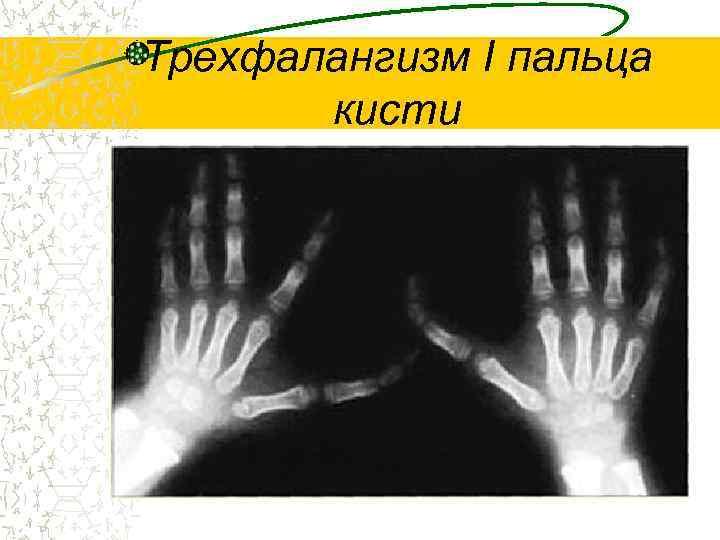 Трехфалангизм I пальца  кисти