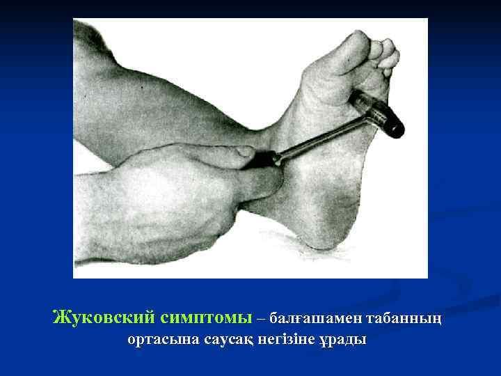 Жуковский симптомы – балғашамен табанның  ортасына саусақ негізіне ұрады