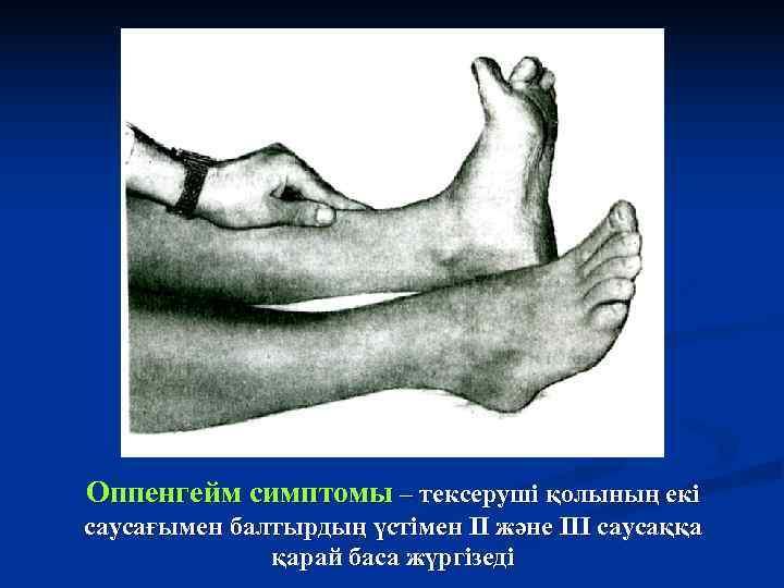 Оппенгейм симптомы – тексеруші қолының екі саусағымен балтырдың үстімен II және III саусаққа