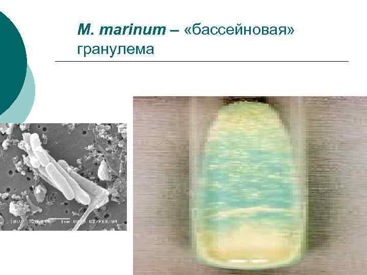 M. marinum – «бассейновая» гранулема
