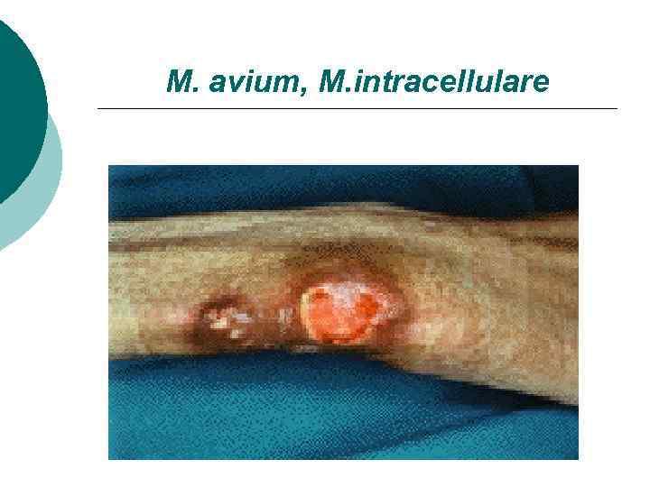 M. avium, M. intracellulare