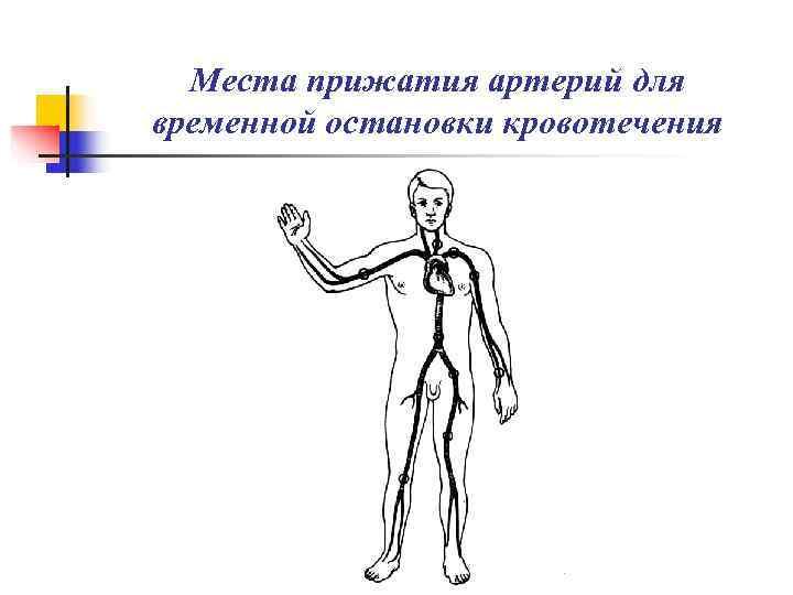 Места прижатия артерий для временной остановки кровотечения