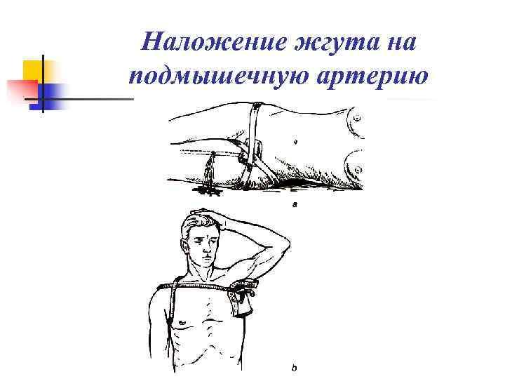 Наложение жгута на подмышечную артерию