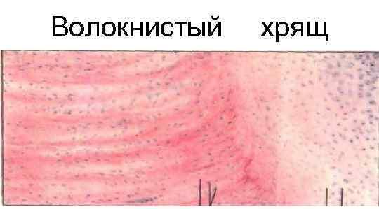 Волокнистый  хрящ