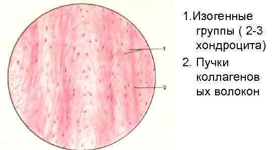 1. Изогенные  группы ( 2 -3  хондроцита) 2. Пучки  коллагенов