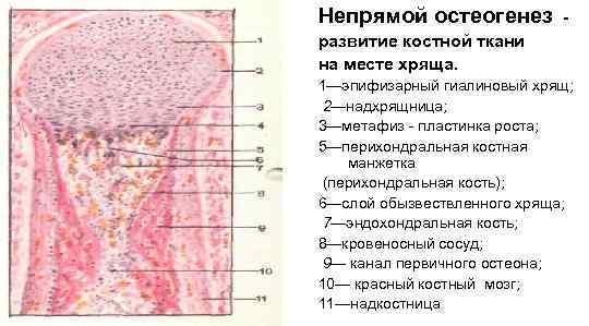 Непрямой остеогенез   - развитие костной ткани на месте хряща. 1—эпифизарный гиалиновый хрящ;